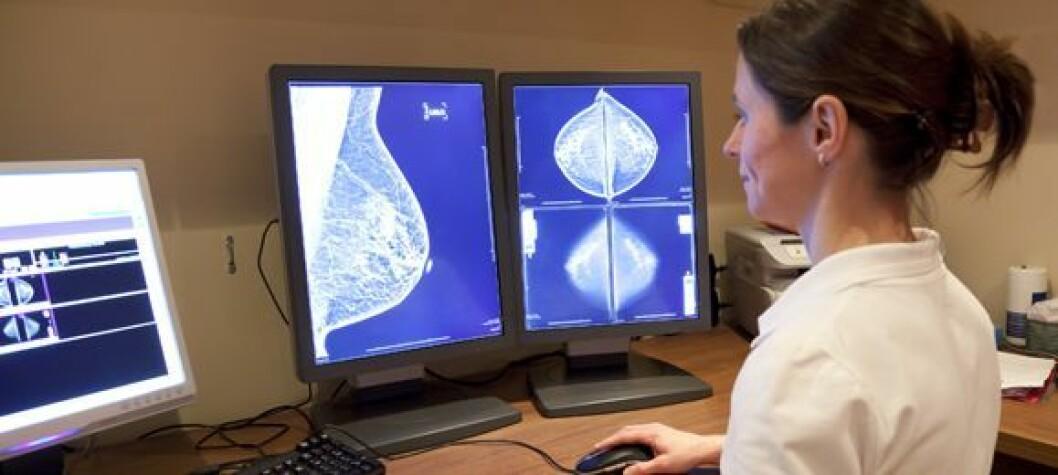Fordelene ved organisert mammografiscreening er større enn ulempene, slår en stor europeisk studie nå fast. Foto: Fotolia