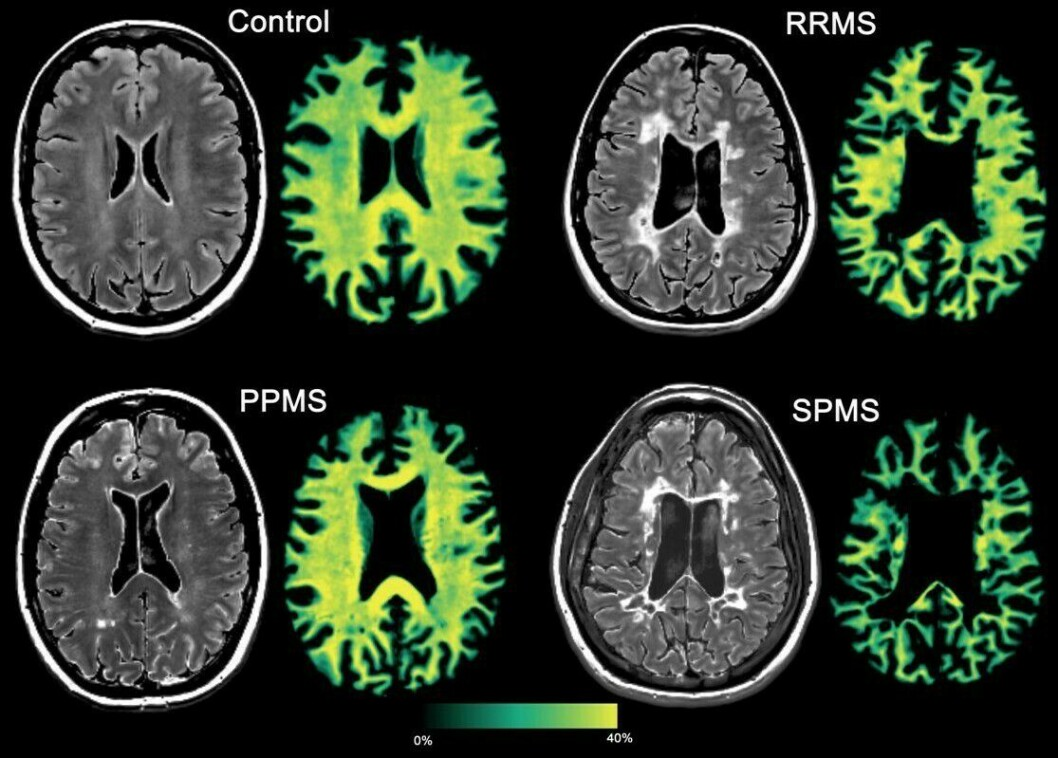 Den ene av de to teknikkene forskerne har kombinert, måler myelinet rundt hjernens nervetråder, noe som skades ved multippel sklerose.